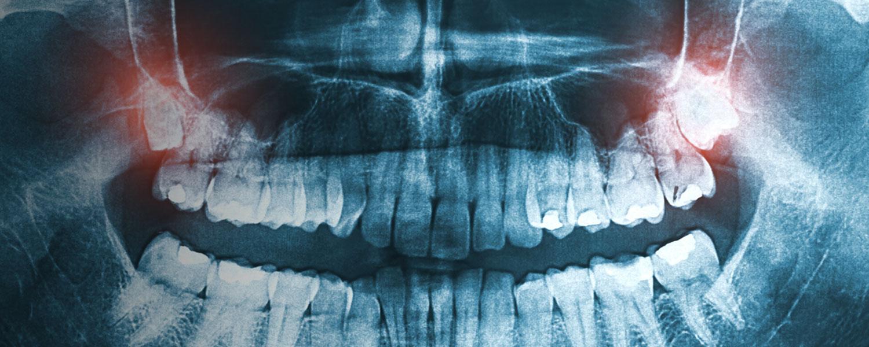 bannerwisdomteethextraction  oral and facial surgery